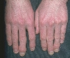 localisation: Fingerendgelenk, Fingernagel, Diagnose: Psoriasis arthropathica