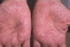 localisation: palms, diagnosis: Pustular Psoriasis of the Palms and Soles