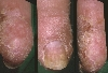 Lokalisation: Finger, Fingernagel, Diagnose: Nagelpsoriasis