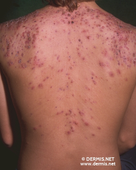 localisation: upper back diagnosis: Acne Conglobata