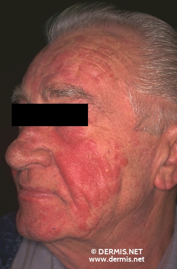 localisation: face diagnosis: Rosacea, Lupoid
