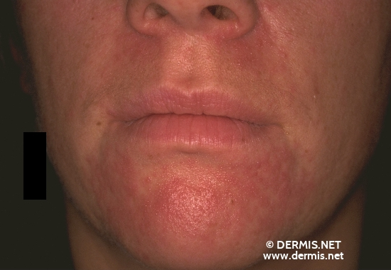 localisation: peri-oral diagnosis: Perioral Dermatitis