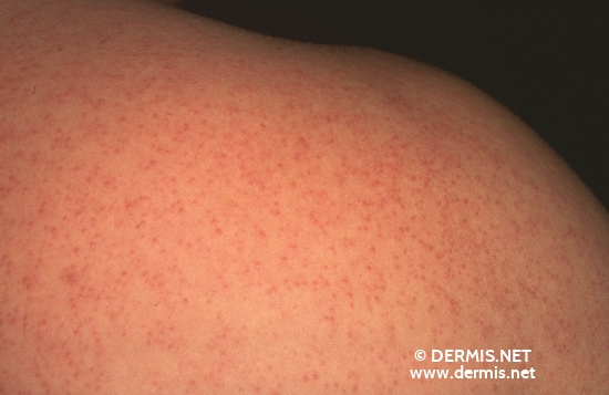steroid acne differential diagnosis