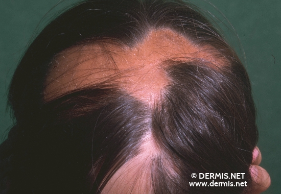 localisation: scalp diagnosis: Alopecia Areata