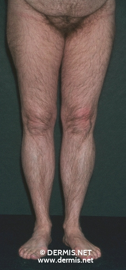 localisation: anogenital region legs diagnosis: Hirsutism