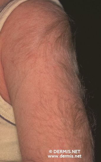localisation: upper arms diagnosis: Hypertrichosis