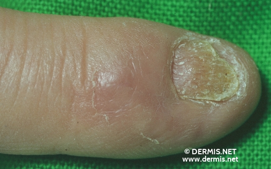 localisation: tip of the finger fingernail diagnosis: Eczema Nails