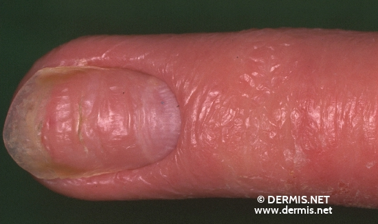 localisation: finger diagnosis: Atopic Eczema