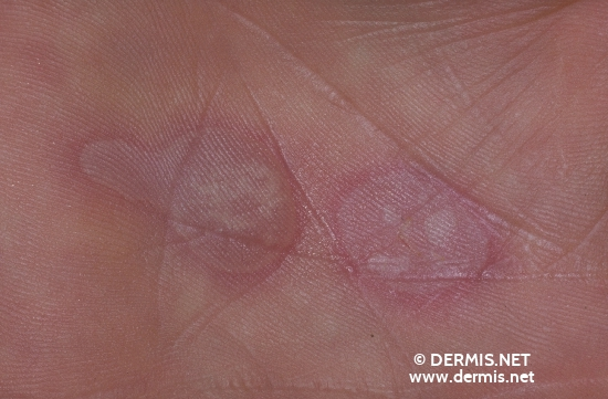 localisation: Handinnenfläche Diagnose: Erythema exsudativum multiforme, Typ Minor