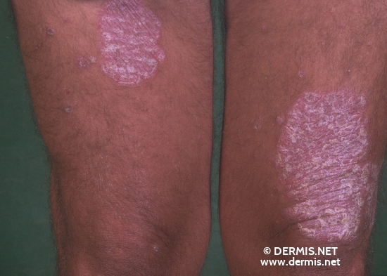 localisation: knee diagnosis: Psoriasis Vulgaris, Chronic Stationary Type