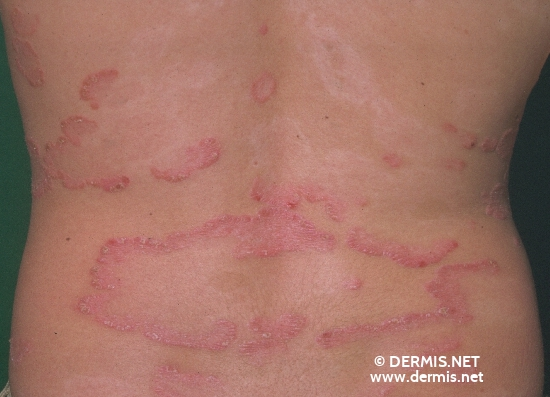 localisation: back diagnosis: Psoriasis Vulgaris, Chronic Stationary Type Leukoderma