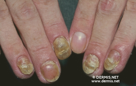 localisation: finger diagnosis: Psoriasis Vulgaris, Nail Changes