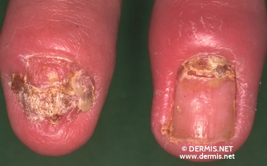 localisation: Finger Fingernagel Diagnose: Nagelpsoriasis