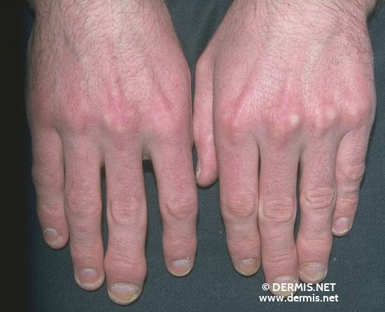 localisation: digital distal interphalangeal joint fingernail diagnosis: Psoriasis Arthropathica