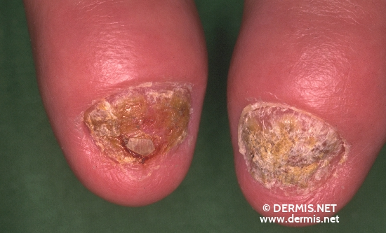 localisation: Fingerendgelenk Fingernagel Diagnose: Psoriasis arthropathica Nagelpsoriasis