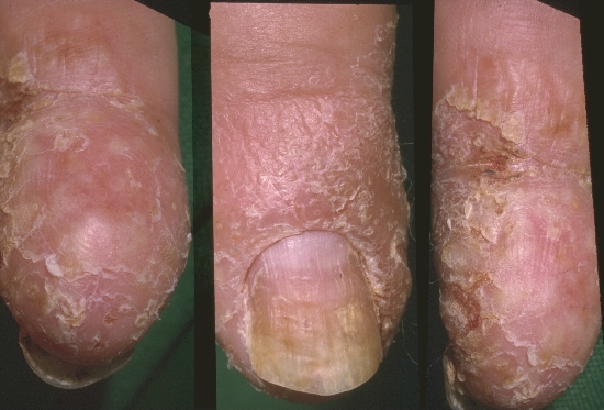 localisation: finger fingernail diagnosis: Pustular Psoriasis of the Palms and Soles Psoriasis Vulgaris, Nail Changes