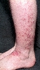 localisation: lower leg, diagnosis: Nummular Eczema