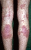 localisation: hollow of the knee, lower leg, diagnosis: Nummular Eczema