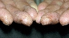 localisation: tip of the finger, diagnosis: Hyperkeratotic Fissured Hand and Foot Eczema