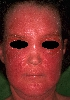 localisation: face, diagnosis: Photoallergic Contact Dermatitis