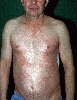 Lokalisation: Brust, Flanke, Diagnose: Hypereosinophile Dermatitis