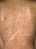 localisation: back, diagnosis: Dermatitis Solaris