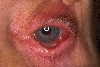 localisation: eyes, eyelids, diagnosis: Benign Mucosal Pemphigoid