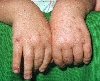 localisation: hands, diagnosis: Prurigo, Acute of Childhood