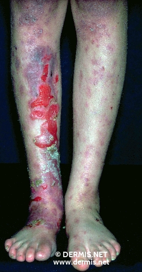 localisation: lower leg toe diagnosis: Epidermolysis Bullosa Hereditaria