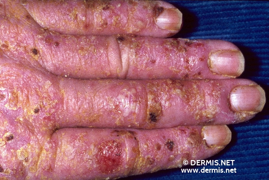 localisation: back of the hands finger diagnosis: Allergic Hand Eczema Allergic Contact Dermatitis, Acute & Chronic