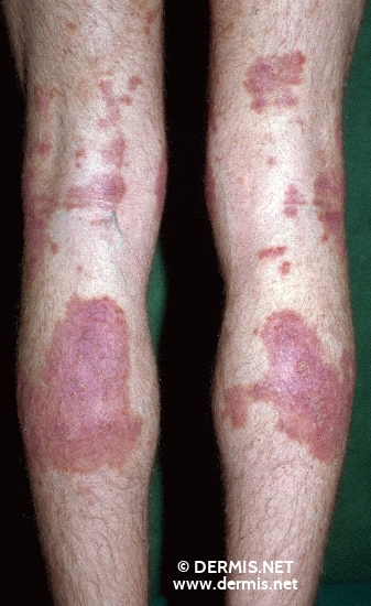 localisation: hollow of the knee lower leg diagnosis: Nummular Eczema