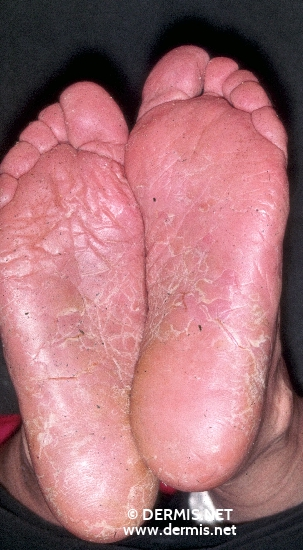 localisation: sole diagnosis: Hyperkeratotic Fissured Hand and Foot Eczema
