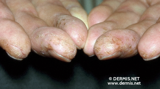 localisation: tip of the finger diagnosis: Hyperkeratotic Fissured Hand and Foot Eczema