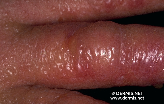 localisation: finger diagnosis: Acute Irritant Contact Dermatitis