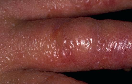 Dermatitis, irritant; Dermatitis, Primary Irritant ...