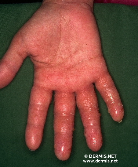 localisation: palms diagnosis: Acute Irritant Contact Dermatitis