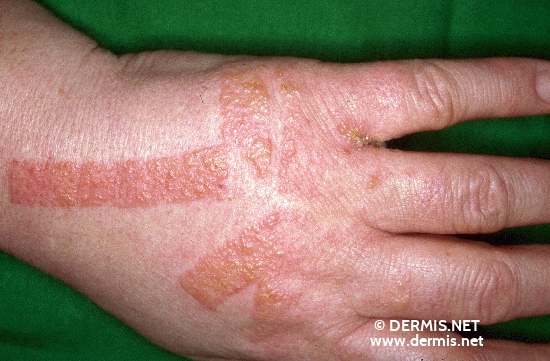 localisation: back of the hands diagnosis: Acute Irritant Contact Dermatitis