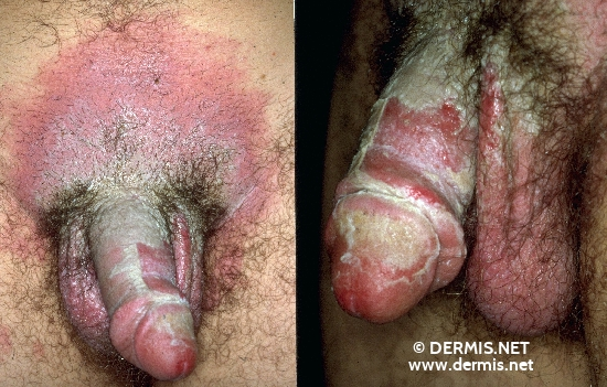 localisation: lower abdomen penis scrotum diagnosis: Acute Irritant Contact Dermatitis