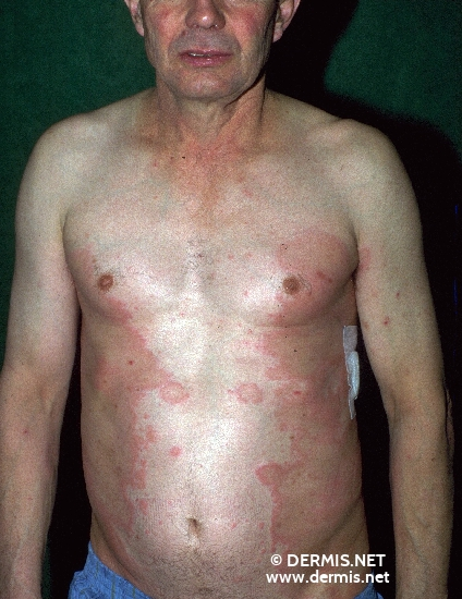 localisation: chest flank diagnosis: Hypereosinophilic Dermatitis