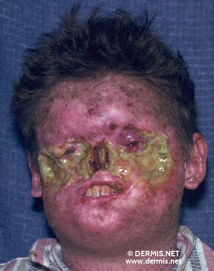 localisation: face diagnosis: Xeroderma Pigmentosum