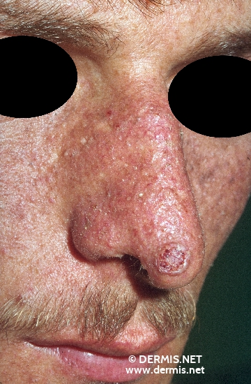 localisation: tip of the nose diagnosis: Solid-Cystic Basal Cell Carcinoma Xeroderma Pigmentosum Tardivum