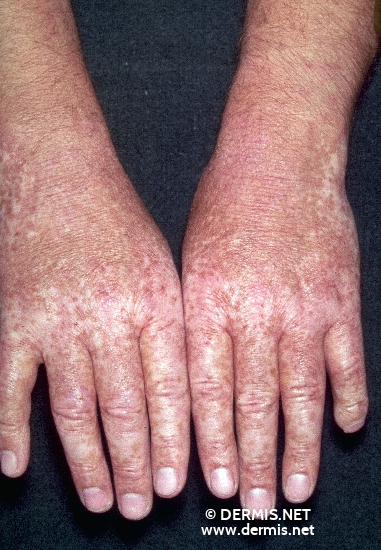 localisation: lower arms back of the hands diagnosis: Riehl's Melanosis