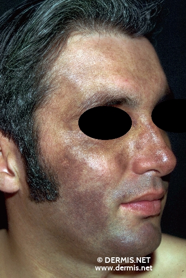 localisation: face diagnosis: Riehl's Melanosis
