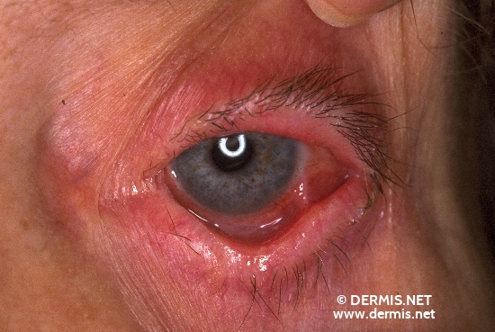 localisation: eyes eyelids diagnosis: Benign Mucosal Pemphigoid