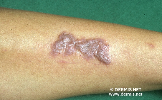 localisation: lower leg diagnosis: Lichen Planus Verrucosus
