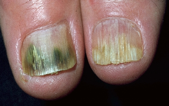 localisation: subungual (fingernail) nail plate of the finger diagnosis: Onychomycosis Lichen Planus