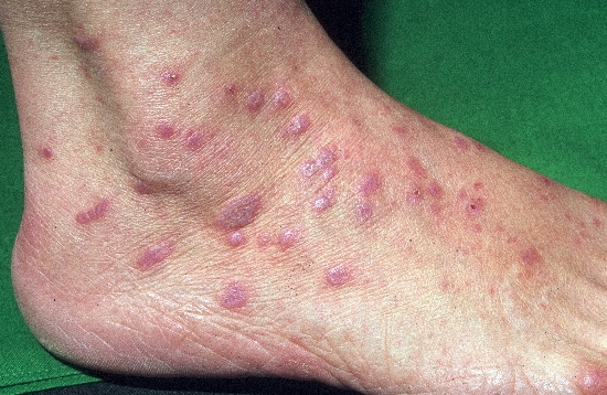 localisation: ankle joint back of the feet diagnosis: Lichen Planus