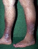 localisation: lower leg, diagnosis: Ulcus Cruris Venosum
