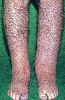 localisation: lower leg, diagnosis: Lymphoedema