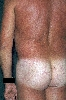 localisation: buttocks, diagnosis: Livedo Reticularis